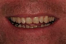 Dr  David Keen, D D S , M S , Beverly Hills Dentist