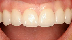 No Prep Porcelain Veneers